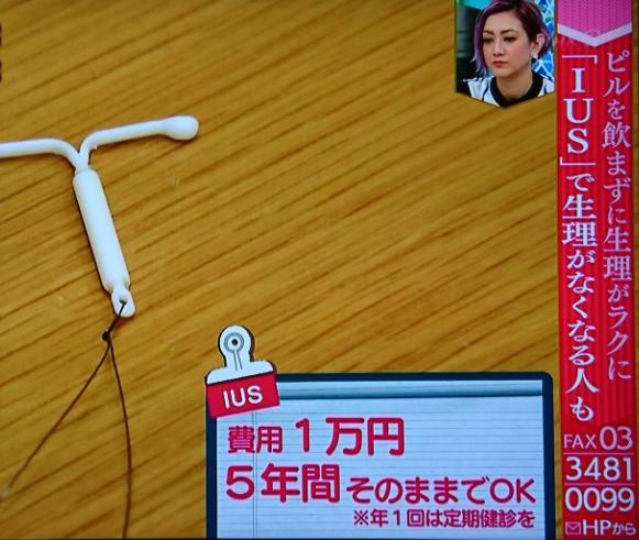 あさイチ(NHK)